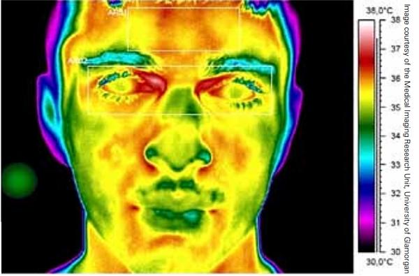 Image thermique ou thermogramme infrarouge d'un visage.